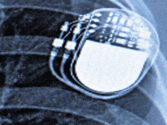 [Translate to Chinesisch:]  header-implantate.JPG